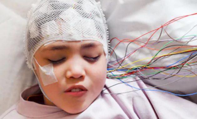 epilepsi pada anak, gejala epilepsi, penyebab penyakit epilepsi, epilepsi