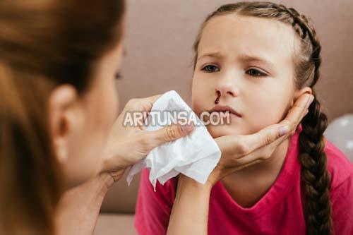 cara mencegah mimisan, mimisan pada anak, cara mengatasi mimisan